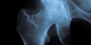 Артроз тазобедренного сустава (коксартроз)