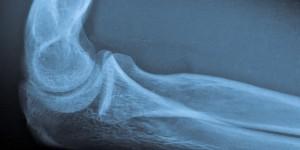 Повреждение коллатеральной связки локтя
