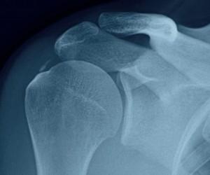 Тендинит двуглавой мышцы
