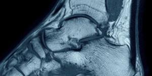 Розтягнення зв'язок гомілковостопного суглоба
