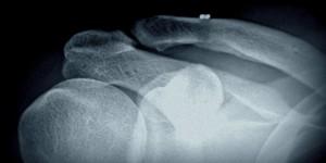 Повреждения акромиально-ключичного сустава