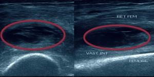 Разрыв сухожилия четырехглавой мышцы бедра