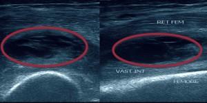 Розрив сухожилля чотириголового м'яза стегна