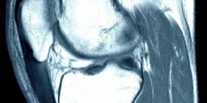Тендинит/тендиноз сухожилья надколенника (колено прыгуна)