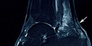 Хронический тендиноз ахиллового сухожилья