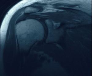Повреждения ротаторной манжеты плеча