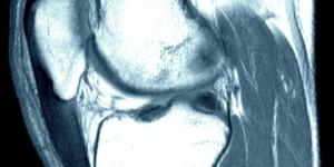 Тендиніт / Тендіноз сухожилля надколінка  (коліно стрибуна)
