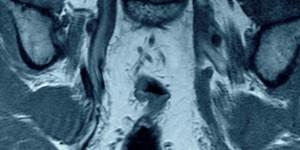 Синдром грушоподібного м'яза